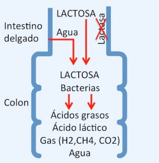 malabsorción-de-la-lactosa